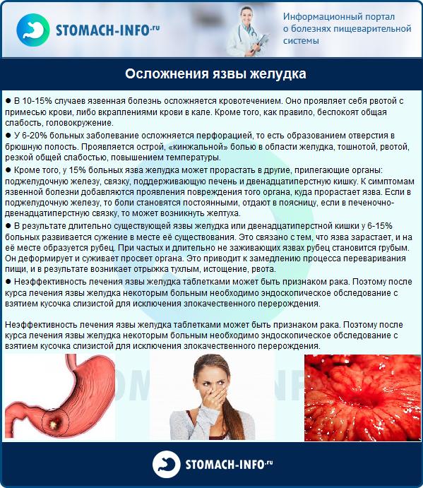 Язвенная болезнь у детей: симптомы, классификация и лечение.