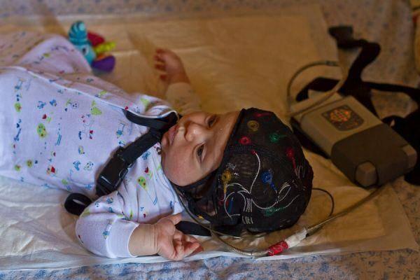 Церебральная ишемия 1, 2, 3 степени у новорожденного: что это такое, последствия