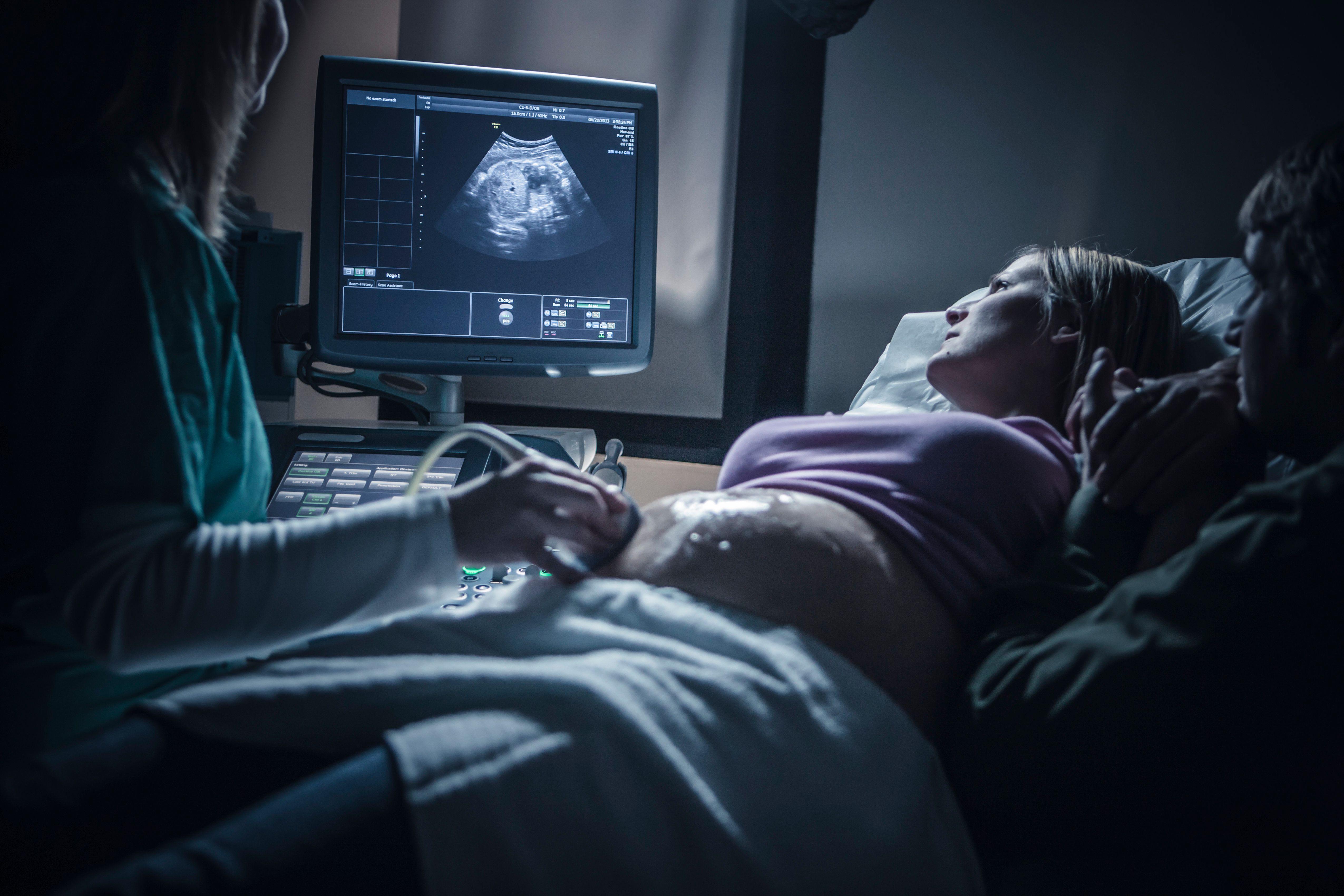Узи при беременности                        на каких сроках делают узи