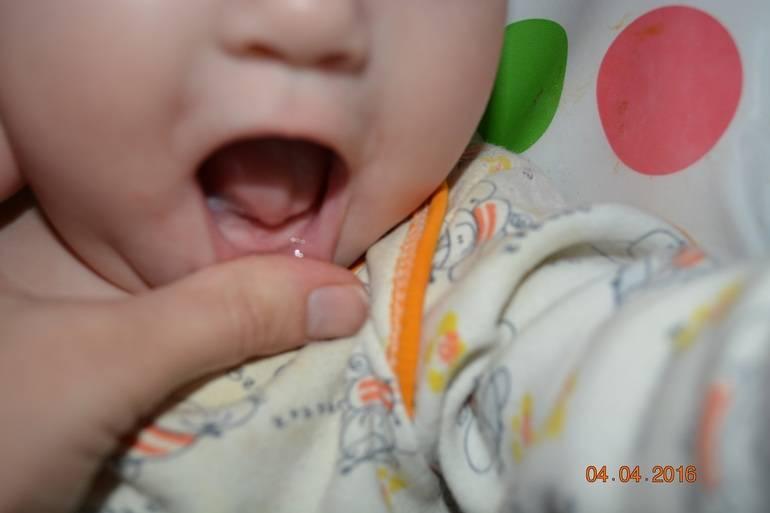 Может ли быть рвота при прорезывании зубов у ребенка 2 года