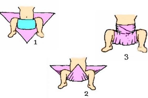Профилактика дисплазии тазобедренных суставов техникой широкого пеленания: пошаговый видео-урок - все о суставах
