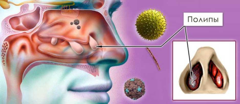 Полипы в носу: способы лечения без операции