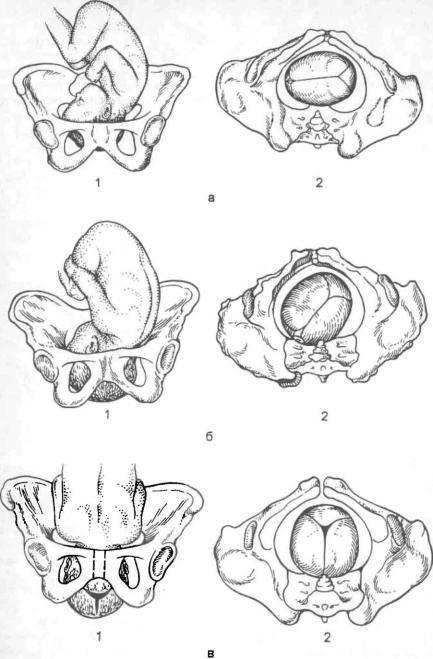 Расхождение костей таза при беременности когда роды - все о суставах