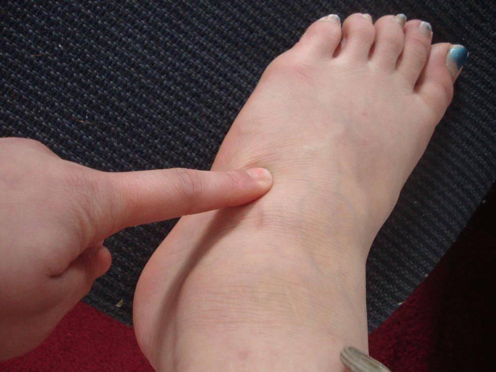 Как лечить гигрому на голеностопном суставе: фото, причины и лечение народными средствами