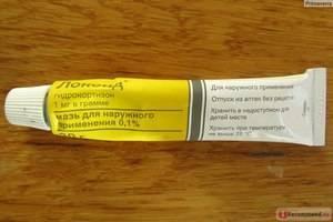 Самые лучшие дешевые мази и кремы от аллергии на коже у взрослых