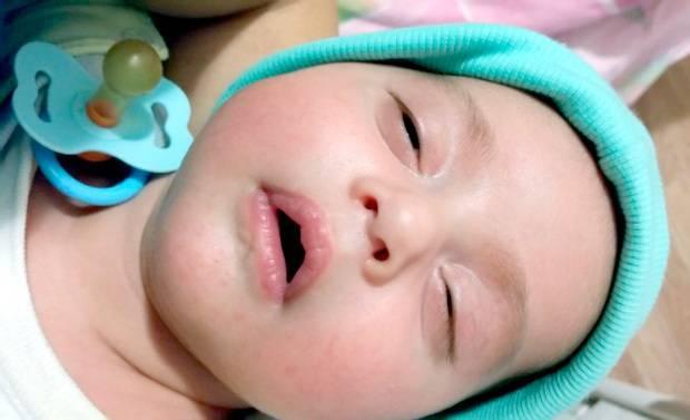 Почему ребёнок спит с приоткрытыми глазами и открытым ртом