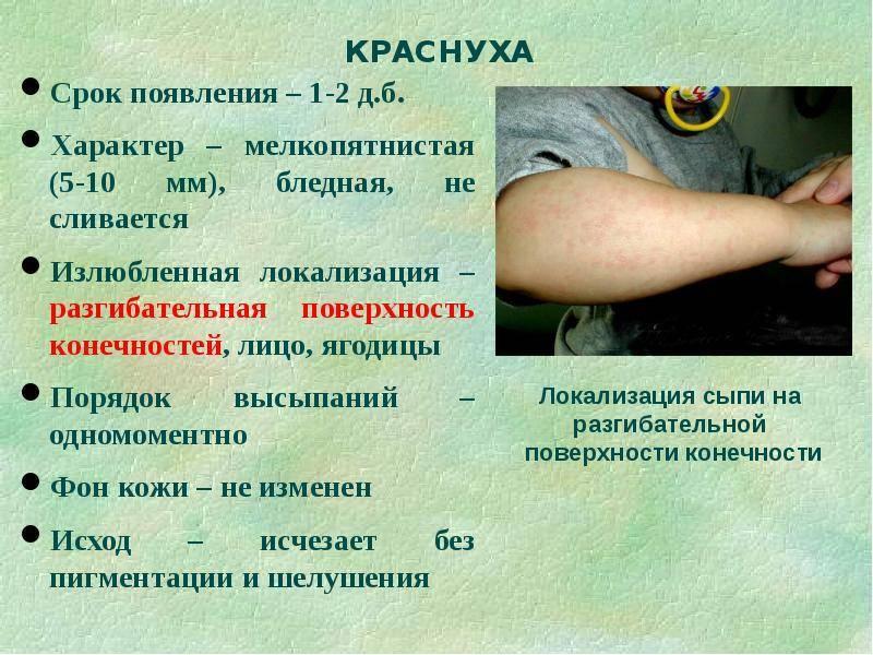 Опоясывающий лишай: фото, симптомы, лечение и причины