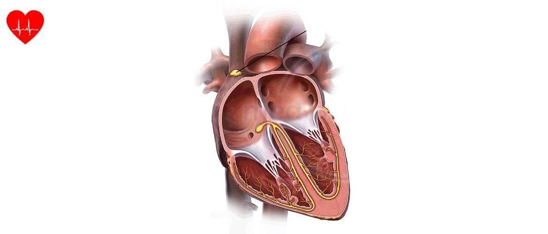 Брадикардия у детей: что это такое, каковы симптомы и лечение патологии сердца?