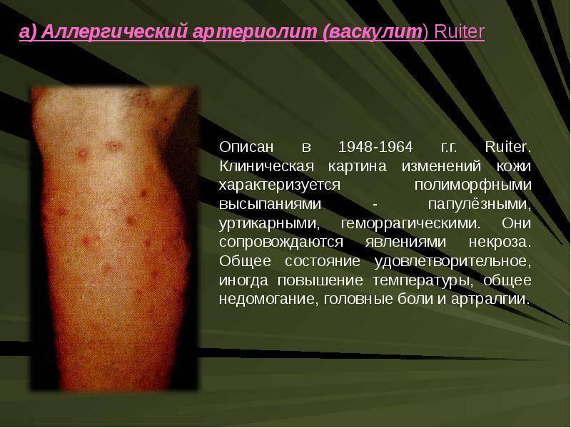 Геморрагический васкулит: симптомы, фото, причины, лечение