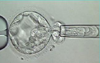 Преимплантационная генетическая диагностика эмбриона