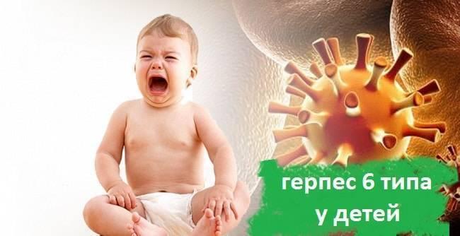 Герпес у детей – типы, симптомы и лечение. вирус герпеса 1, 2, 3, 4, 5, 6 типа у детей. вирус эпштейна-барр у детей, цитомегаловирус у ребенка
