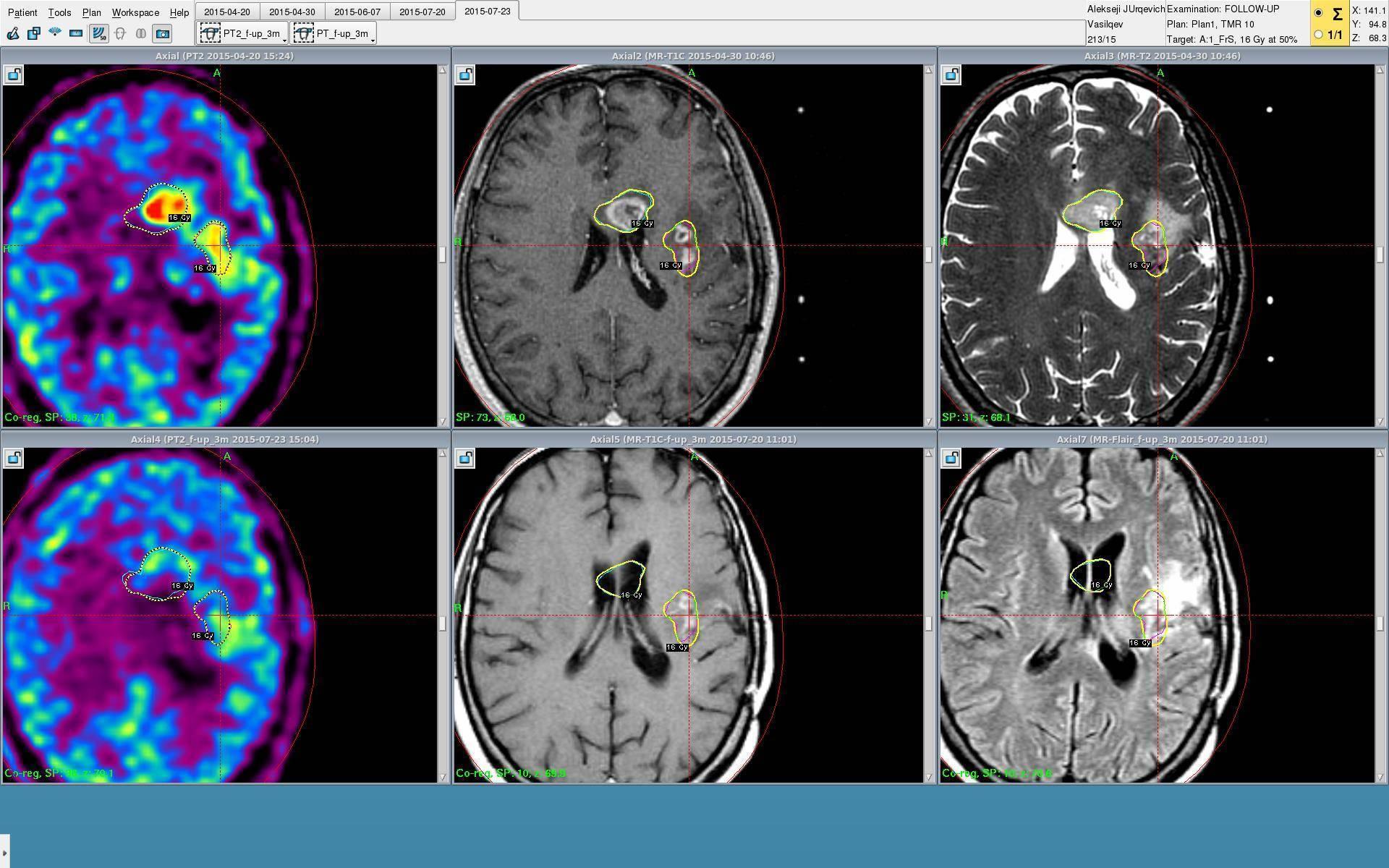 Какие симптомы появляются при опухоли головного мозга у детей