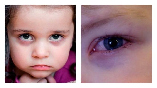 У ребенка 3 лет синяки под глазами. как можно убрать синяки под глазами у ребенка? травмы мягких тканей