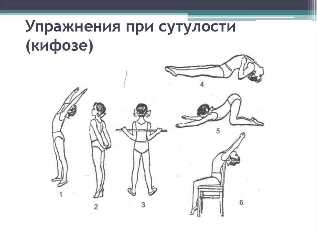 Лечебная гимнастика (лфк) против сколиоза у детей