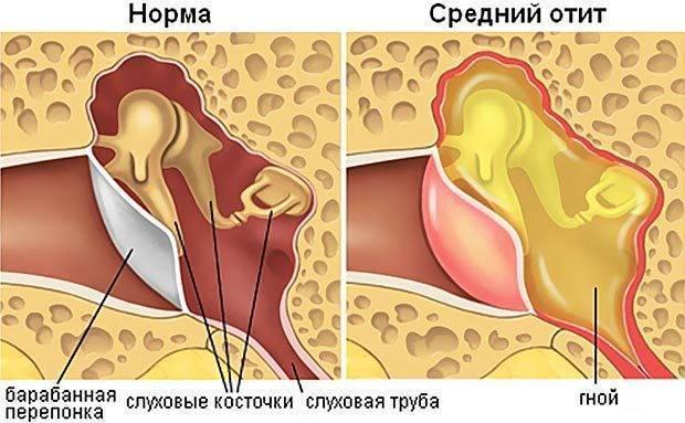 Не проходит экссудативный отит. экссудативный отит у детей — коварное заболевание среднего уха.