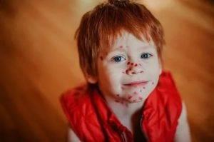 Инструкция по применению «фукорцина» для детей при стрептодермии, опрелостях у новорожденных и других заболеваниях. фукорцин: инструкция по применению для детей