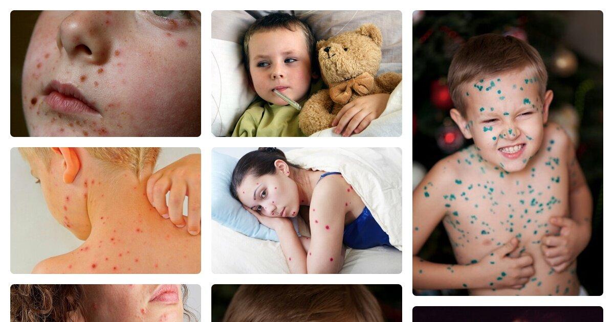 Ветрянка у детей: фото, симптомы, лечение, инкубационный период