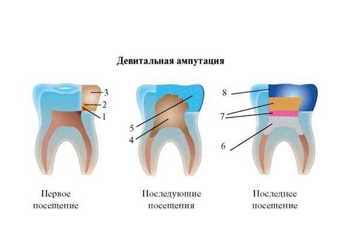 Пульпит у детей молочных зубов лечение в три этапа