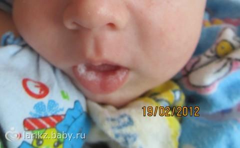 Мозоль на губе у новорожденного: разновидности и симптомы волдырей у ребенка, сосание молока грудничками