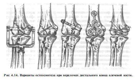 Что такое мыщелковый перелом локтевого сустава, как его вылечить и предотвратить осложнения