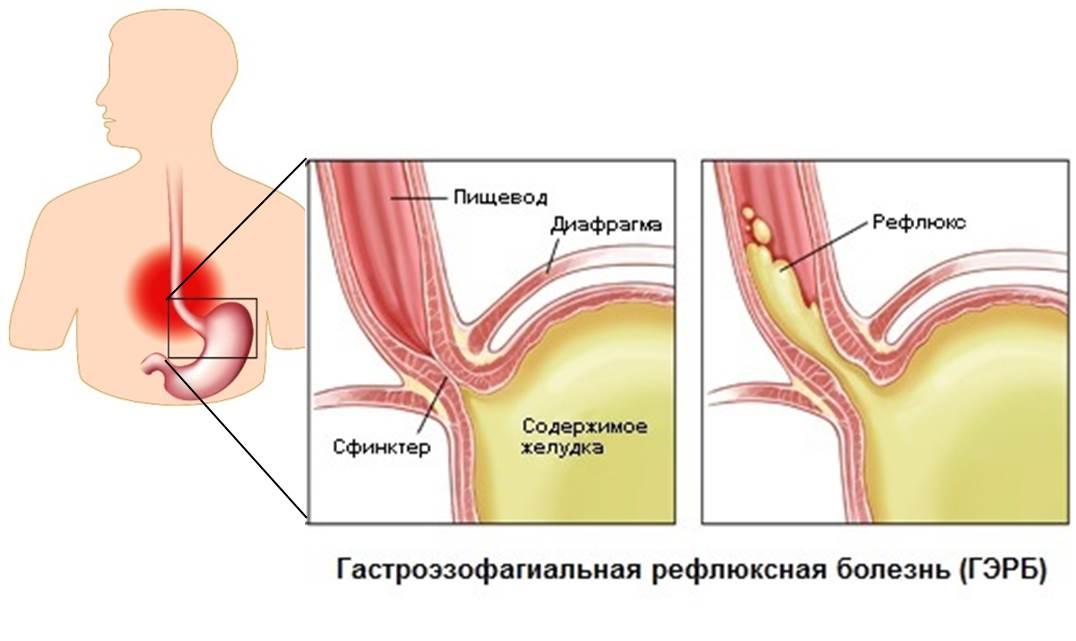 Рефлюкс у детей: симптомы, диагностика, лечение