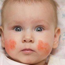 Аллергический дерматит у ребенка: симптомы сыпи, лечение и профилактика