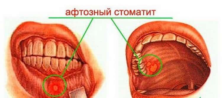 Афтозный стоматит у детей: симптоматика и особенности лечения (80 фото)
