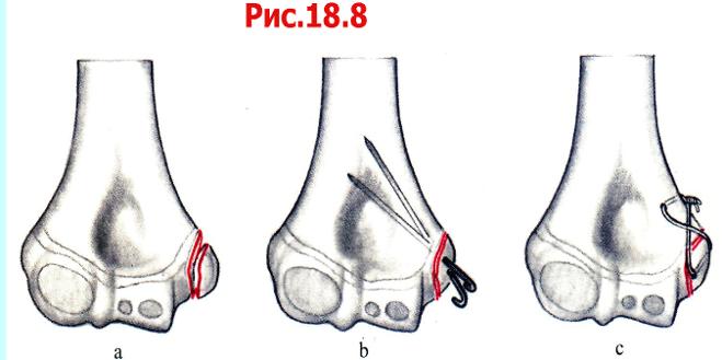 Закрытый перелом плечевой кости у детей без смещения