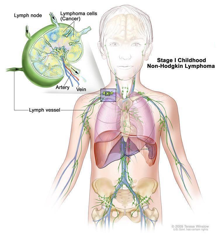 Основные симптомы лимфомы у взрослых - на что стоит обратить внимание и когда обращаться к врачу