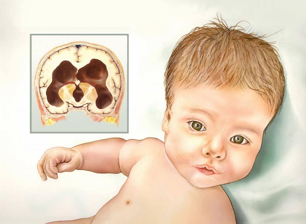 Гидроцефалия. причины, симптомы, признаки, диагностика и лечение патологии