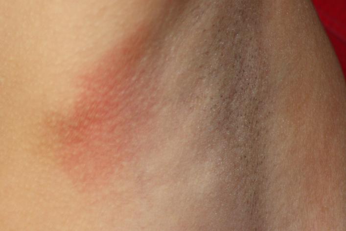 Сыпь на теле у взрослого: как лечить, если чешется, красные высыпания по всему телу и аллергия