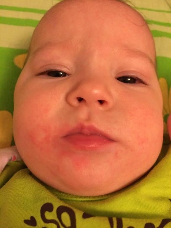 У ребенка аллергия на кабачок и цветную капусту