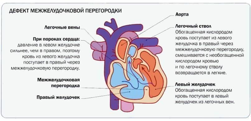 Дефект межжелудочковой перегородки сердца (дмжп): причины, стадии и лечение