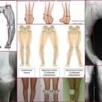 Вальгусная деформация стопы у подростков лечение