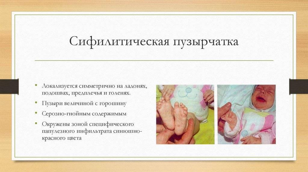 Уход при пузырчатке у новорожденных. особенности заболевания эпидемическая пузырчатка новорожденных и методы его лечения