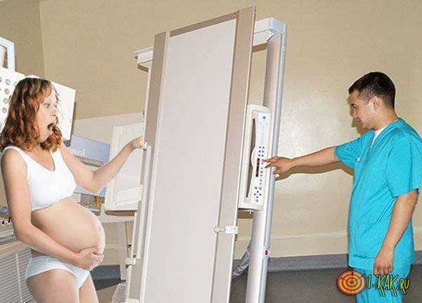 Можно ли проходить рентген при беременности? вероятные последствия