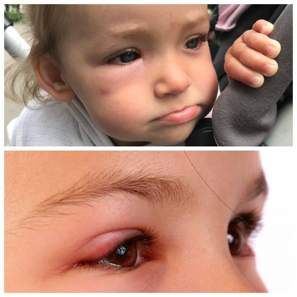 Укусила мошка в глаз: чем снять отек, лечение, фото