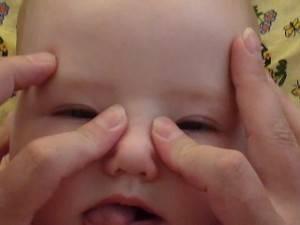 Как правильно делать массаж при дакриоцистите у новорожденных?