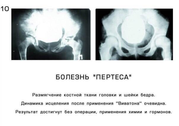 Болезнь пертеса тазобедренного сустава: причины, симптомы и лечение