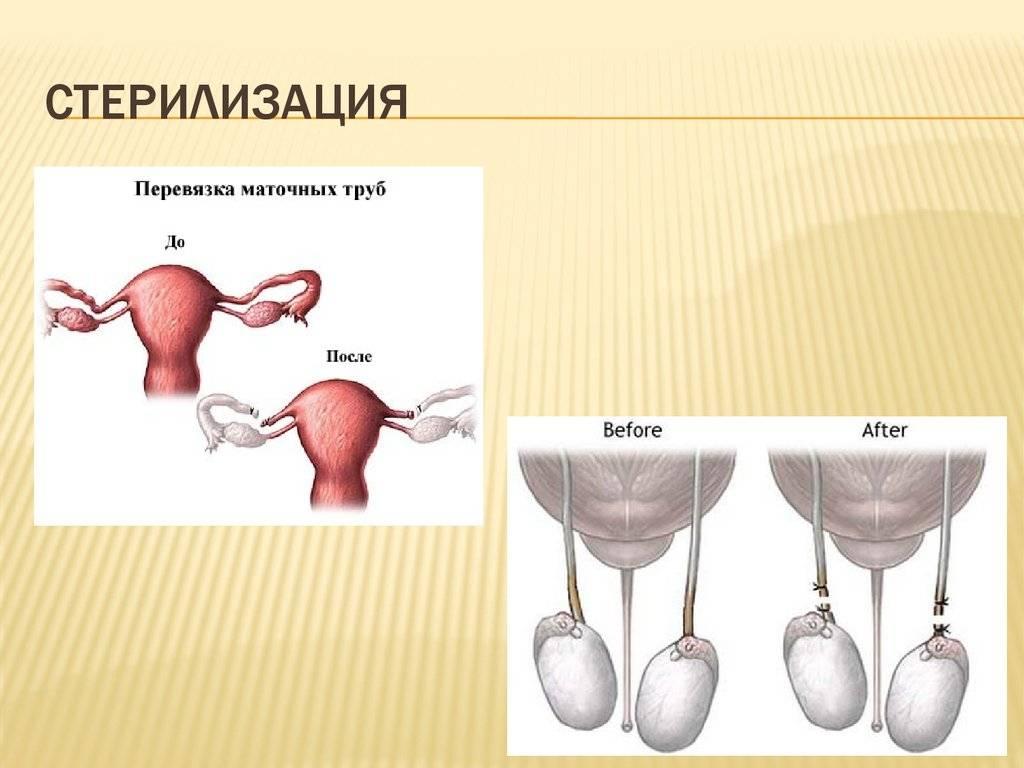 Перевязка маточных труб и другие методы хирургической стерилизации для женщин. научно обоснованная информация для пациентов.