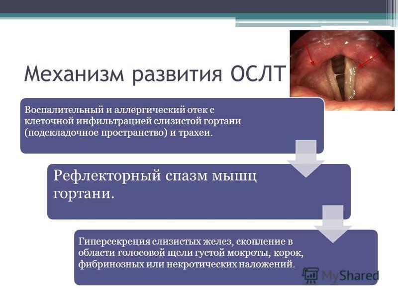 Особенности ларингоспазма у детей и алгоритм неотложной помощи. ларингоспазм у детей: причины, симптоматика, лечение и профилактика