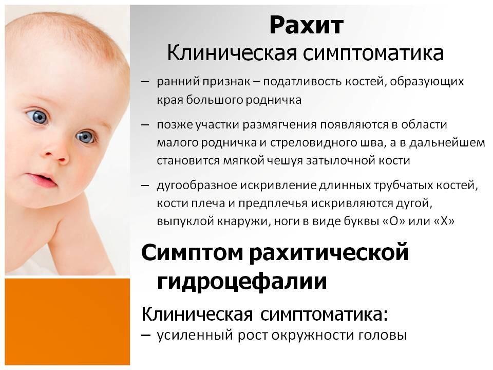 Рахит до 1 года: признаки заболевания у грудничков с фото, способы лечения и меры профилактики - все о суставах