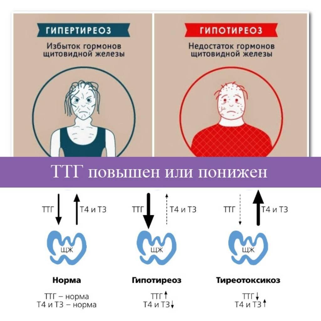 Повышен пролактин щитовидная железа: железа, побочные эффекты, повышен, продукты, пролактин, свечи, фото, щитовидная