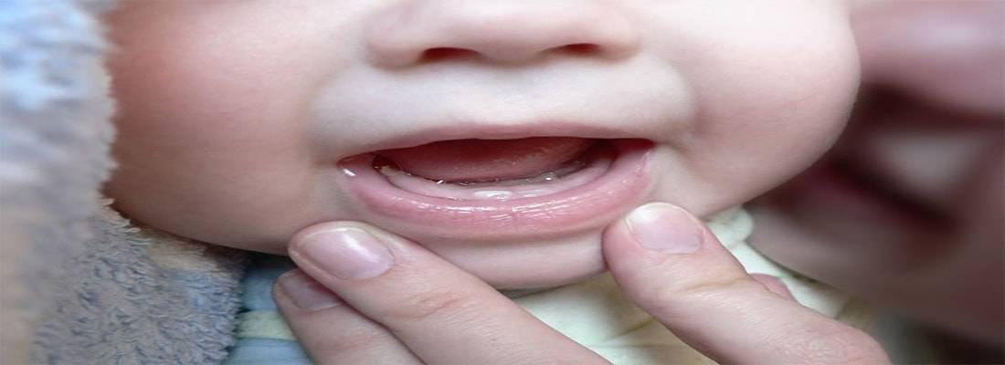 По каким симптомам понять, что у ребенка режутся зубки?