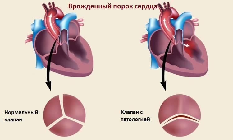 Врожденный порок сердца у грудничка