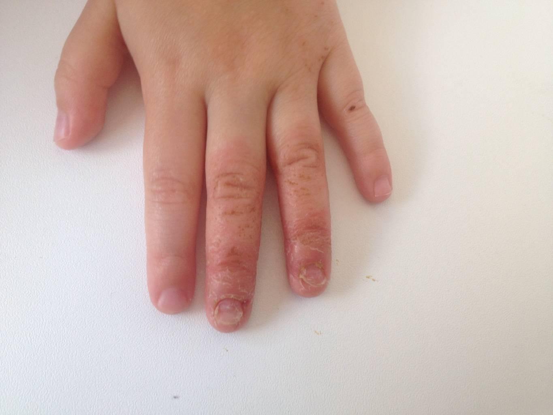 Что делать, если у ребенка слоятся или ломаются ногти на ногах?
