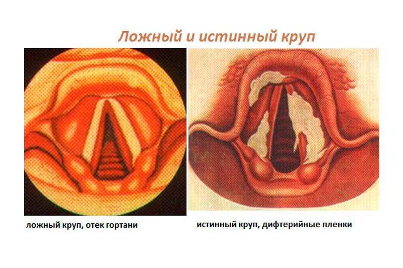 Отек горла — причины возникновения, симптомы появления и способы лечения