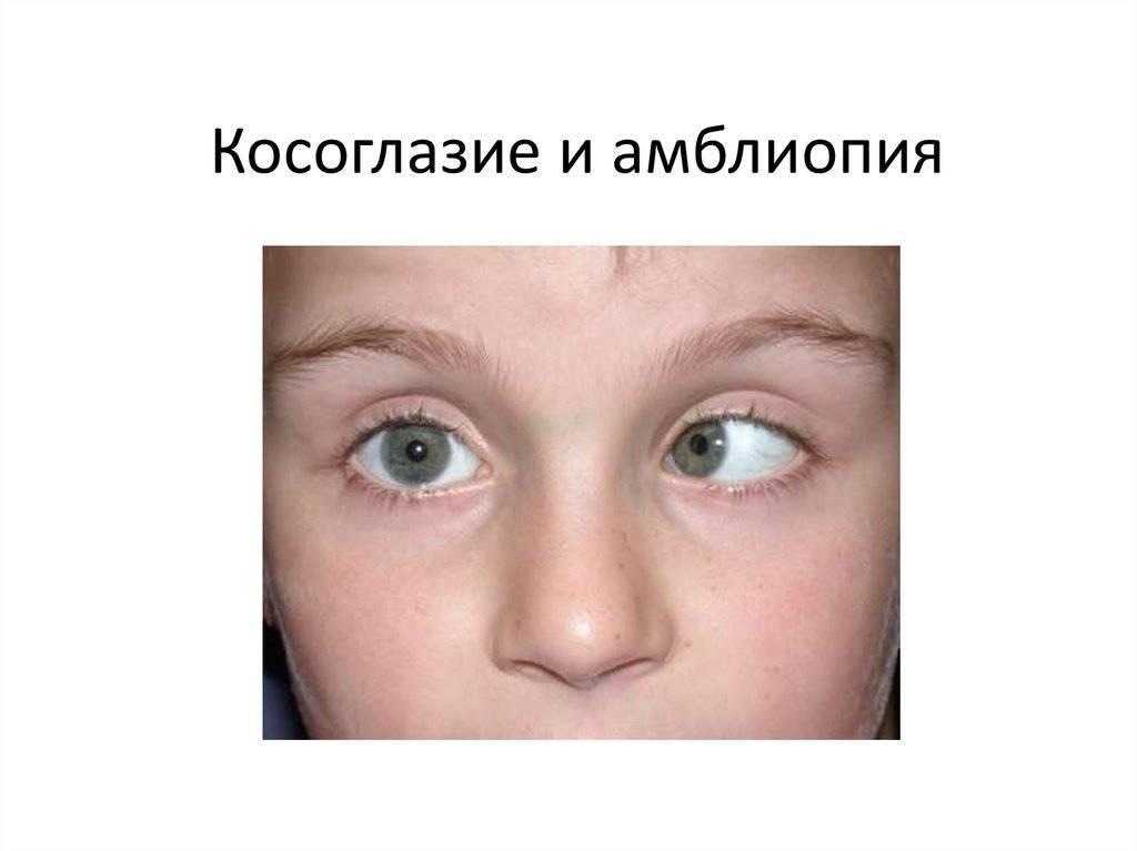 """Амблиопия (синдром """"ленивого глаза"""") у детей: что это такое, лечение, причины"""