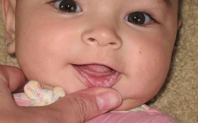 Молочница во рту у ребенка: что собой представляет и как лечить?