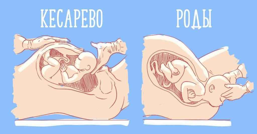 На какой неделе рожают первого, второго ребёнка: статистика